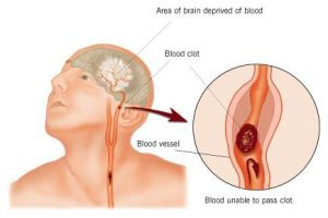 Blood Clots/Stroke Picture